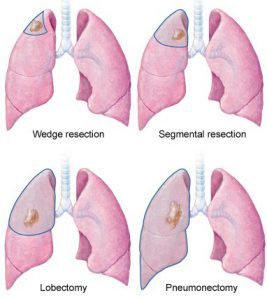 Lung cancer surgery: Wedge resection, Segmental resection, Lobectomy, and Pneumonectomy