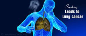 Smoking leads to lung cancer